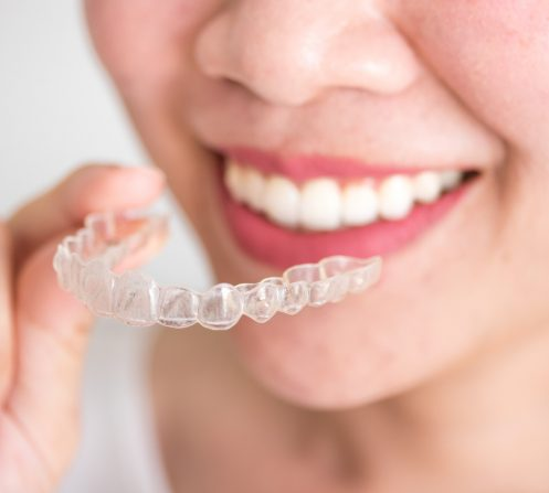 Get the Perfect Smile This Spring With Invisalign