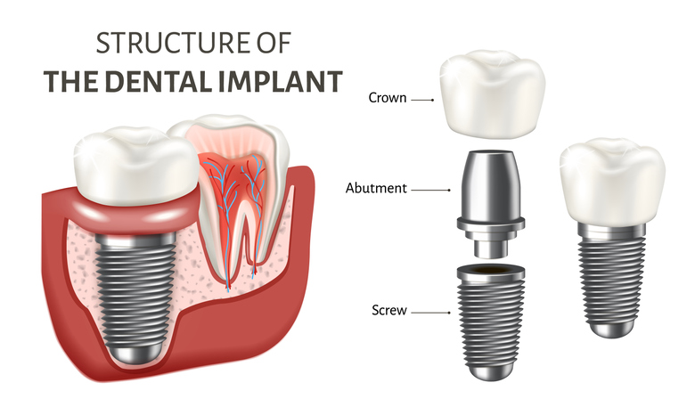 Structure of Dental Implants Graphic